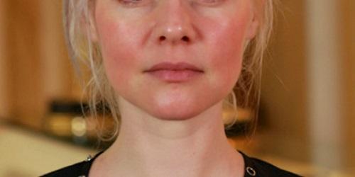 tratamiento natural de la rosacea en la cara