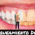 tipo de tratamiento de blanqueamiento dental