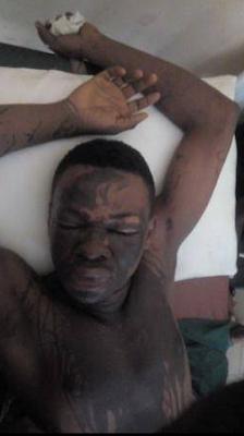 Lady allegedly bathes ex-boyfriend with acid in Akwa Ibom state (photos)