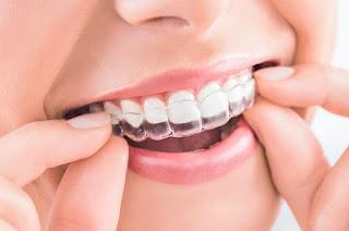 sistema de ferulas transparentes plasticas para ortodoncia