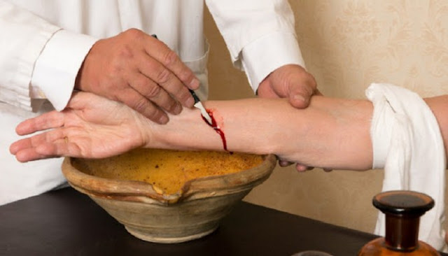 Berikut Enam Metode Pengobatan Paling Unik Yang Pernah Dipraktekan