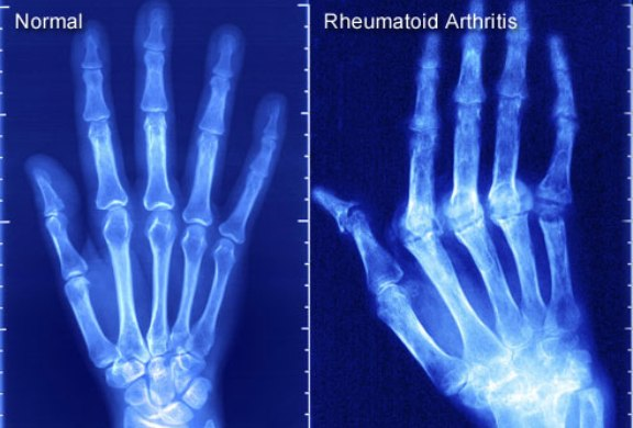 Xray of Hand With Rheumatoid Arthritis