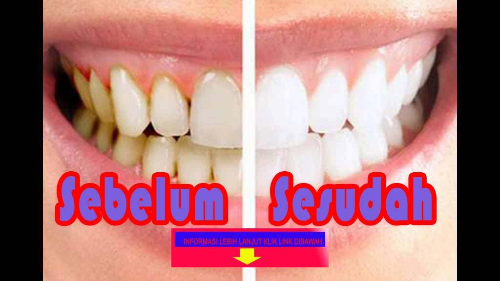 Wow...!! Cara Ampuh Membersihkan Karang gigi Secara Alami Mudah dan ... 65f8690108