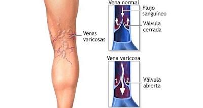 pengobatan Terapi Lintah untuk Penyakit vena