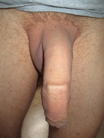 Free shaved foreskins pic