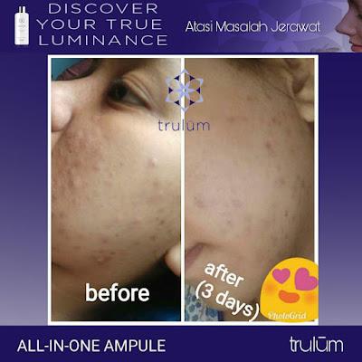 Jual Obat Penghilang Jerawat Trulum Skincare Dukuhturi Tegal