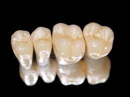 Răng toàn sứ Venus có ưu điểm gì