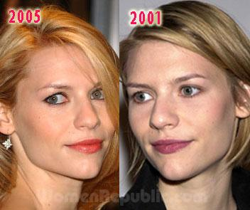 Claire danes breast implants
