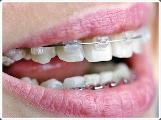 pareri purtarea aparatului dentar igiena si ingrijire