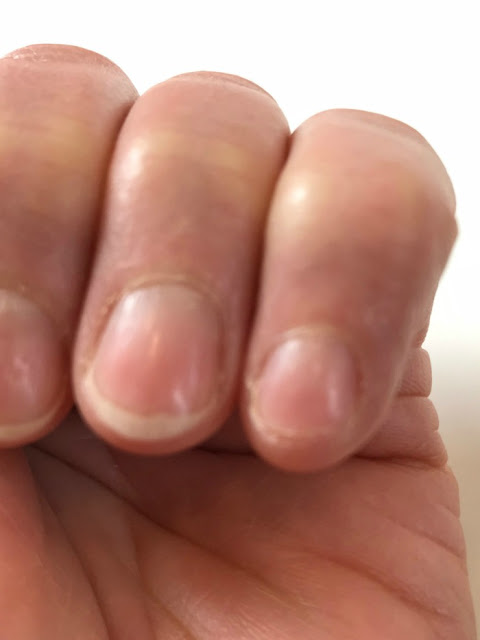 Repaired torn fingernail