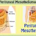 Peritoneal Mesothelioma Cancer