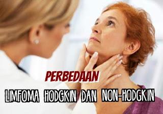 Perbedaan Limfoma Hodgkin Dan Non Hodgkin