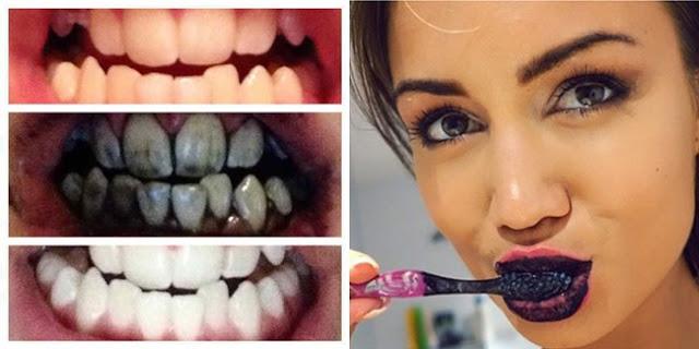 Cara Cepat Putihkan Gigi Hanya Dalam 3 Hari Semoga Bermanfa At