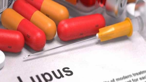 Tanda Dan Gejala Penyakit Lupus