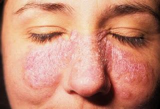 Obat Alami Eksim Kering Pada Wajah Ibu Hamil