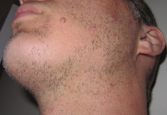 bald facial patch hair