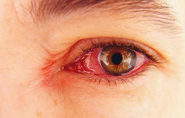 Cara Mengobati Mata Merah Gatal dan Berair