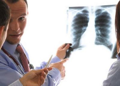 Mesothelioma & Asbestos Claims