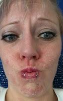 face peel sunburn tca acid burn lip rings blue eyes