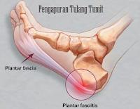 http://www.fatmawatisusi.com/2017/01/pengobatan-herbal-pengapuran-tulang.html