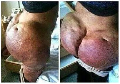 Nasty Butt 101