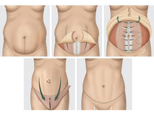 Tecnica de cirugia de Abdominoplastia o lipectomia en Salutaris Guadalajara Mexico
