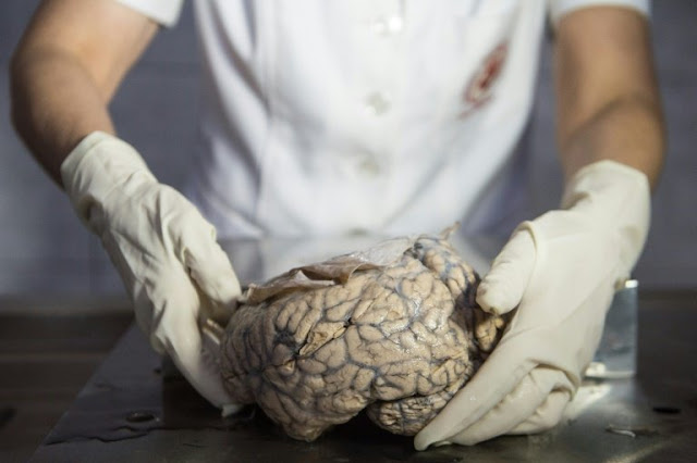 How human brains became so big