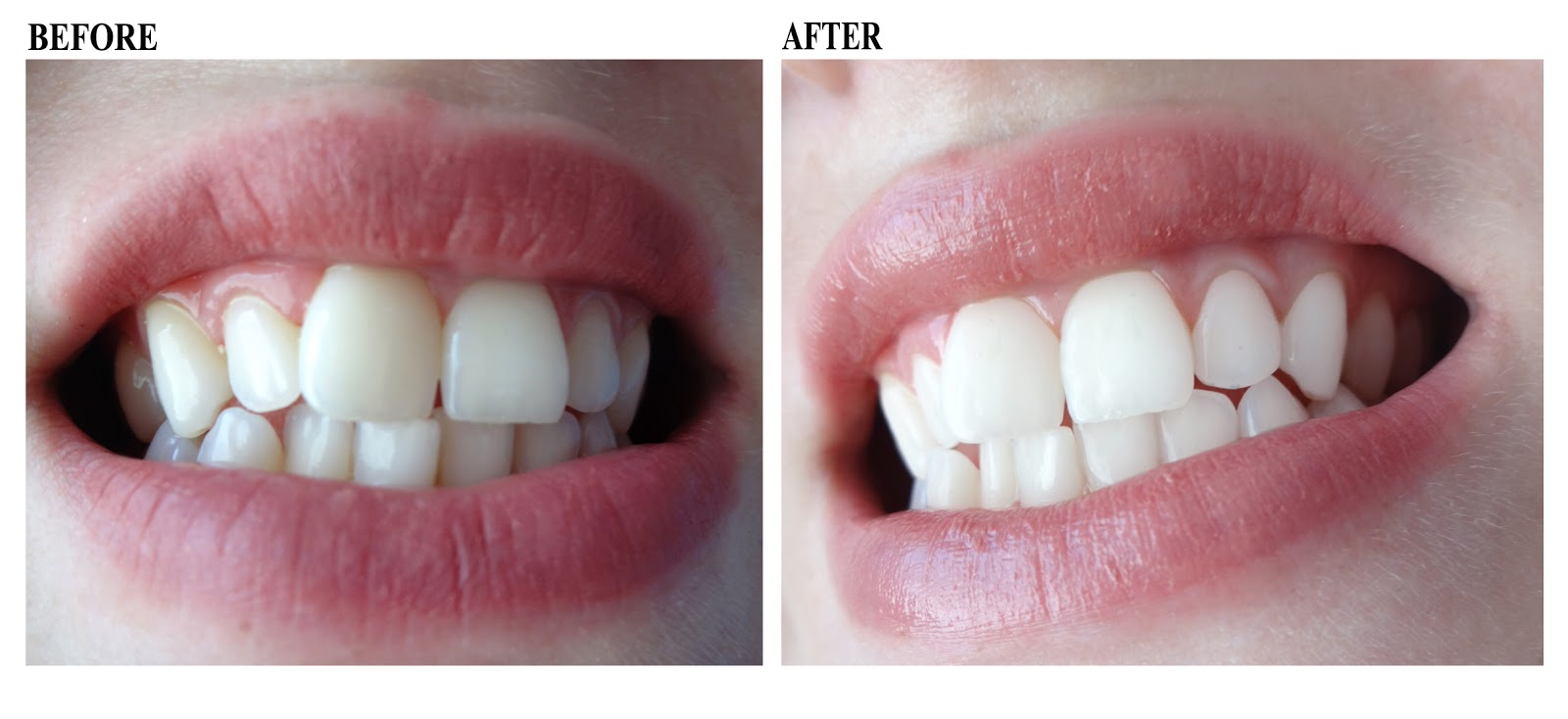 Teeth Whitenin Before and After