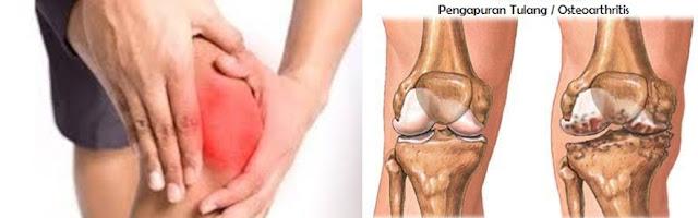 pengobatan alami pengapuran tulang paling manjur