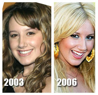 Celebrity Nose Jobs Ashley Tisdale Nose Job Plastic Surgery