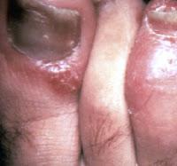 Penyakit Kulit Psoriasis, Gejala, Penyebab & Cara Mengatasi