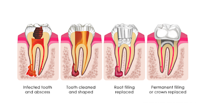 Why are root canals performed?