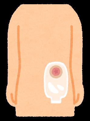 ストーマ用装具を付けた体のイラスト(取り外した状態)