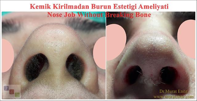 Kemik kırılmadan burun estetiği - Burun ucu estetiği ve burun törpüleme ameliyatı - Burun kemiği kırılmadan burun şekillendirme - Burun kemiği kırılmadan burun estetiği nasıl yapılır? - Burun estetiği ameliyatı nasıl yapılır? - Açık çatı deformitesi - Rhinoplasty without breaking nasal bones - Nose job without breaking bone - Rhinoplasty without breaking bone