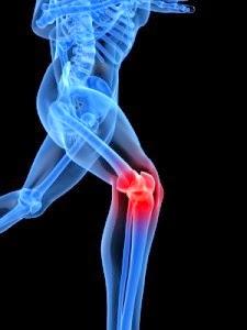 l artrosi può causare perdita di peso