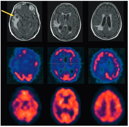 図:オゾン療法の脳梗塞治療効果