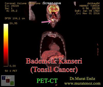 Bademcik kanseri - PET / BT - PET / CT - Tonsil cancer