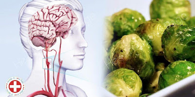 Start Eating These 15 Foods to Avoid the Possibility of Stroke