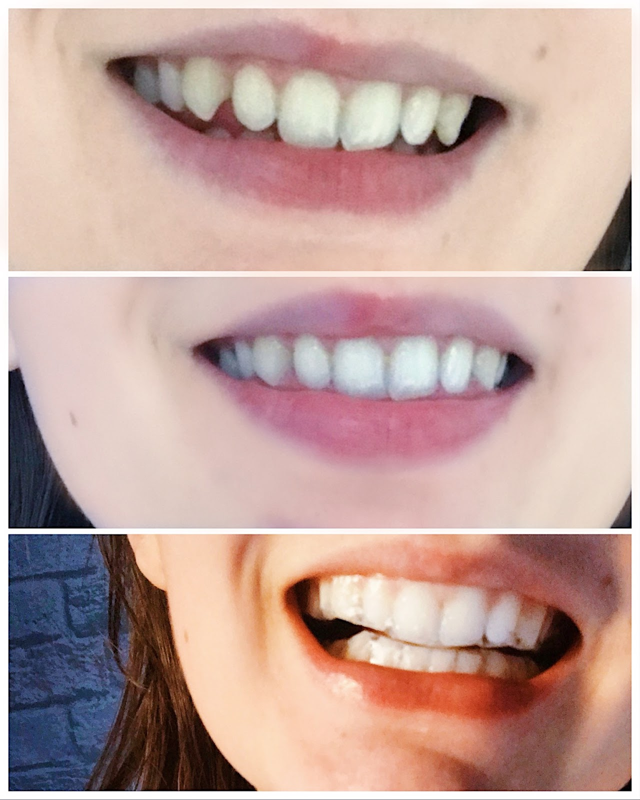 Achieving a Brighter set of Pearly Whites