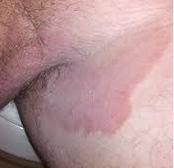 obat jamur kulit pada sekitar selangkangan di apotik