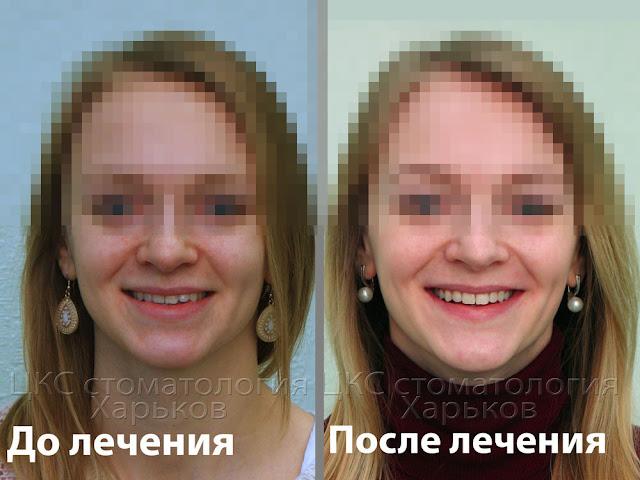 Улыбка пациента до и после лечения