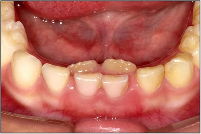 PDF: Management of the Developing Dentition and Occlusion in Pediatric Dentistry