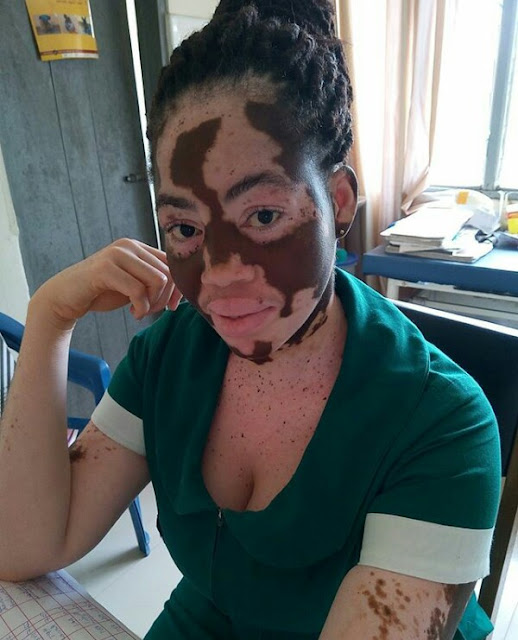"""""""My mum deserves some accolades for enduring all the societal stigma"""" - Lady who suffers from Vitiligo celebrates mother"""