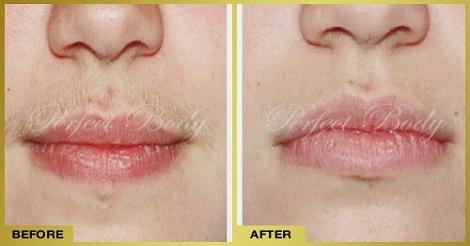 خلطة طبيعية للتخلص من شعر الوجه باستخدام الملح الخشن في دقائق
