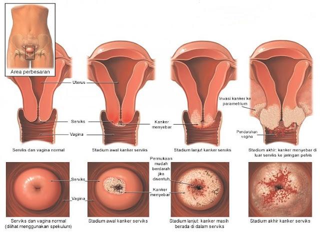 kanker serviks atau kanker rahim penyebab gejala pengobatan kanker serviks, ginseng rh2 capsul obat herbal alami untuk kanker termasuk kanker rahim,obat herbal kanker servik yang sangat ampuh,herbal untuk menyembuhkan kanker serviks,cara mengobati dan pencegahan kanker serviks,obat tradisional kanker rahim,obat herbal alami kanker rahim stadium 1,stadium2,stadium 3,stadium4,jenis obat herbal kanker serviks,info produk ginseng rh 2 capsule