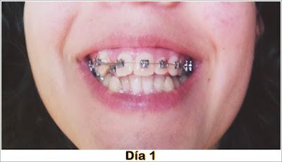 Agustina maldonado google for W de porter ortodoncia