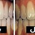 وصفات طبيعية بمكونات منزلية لتبيض الأسنان و إزالة الإصفرار و إحصل علي أسنان ناصعة البياض في أقل من 5 أيام
