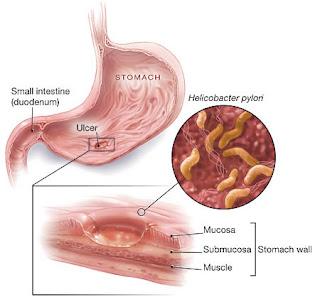 helicobacter-pylori Хеликобактери гэж юу вэ?