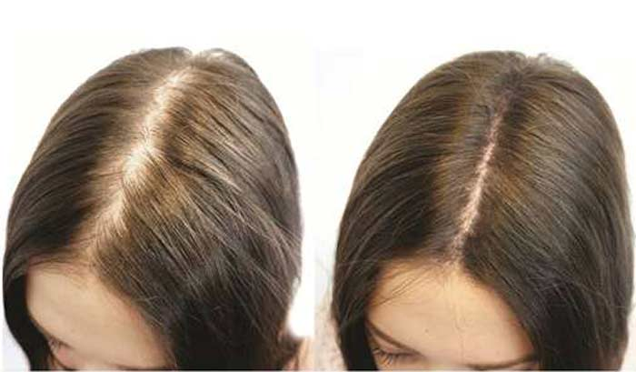 rambut gugur minum kolagen