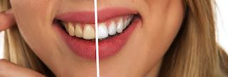 5 Perawatan Rumahan Yang Bisa Membuat Gigi Kamu Putih Dan Bersih